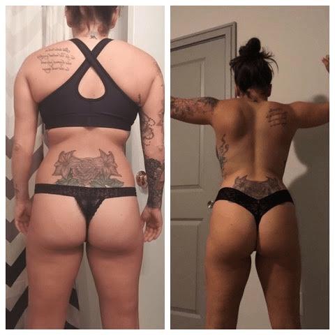 Theresa- Metabolic Dysfunction