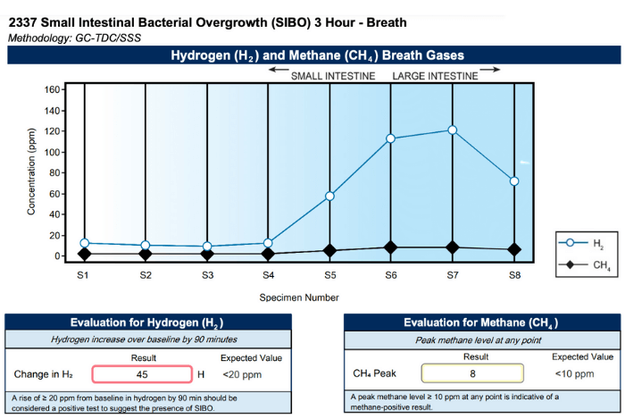 sibo testing breath test results graph showing positive for hydrogen SIBO